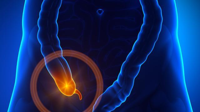 割除阑尾对身体有影响吗?
