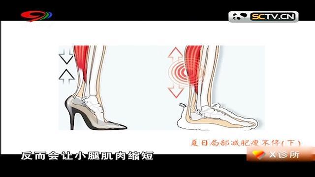 常穿高跟鞋腿会变弯吗