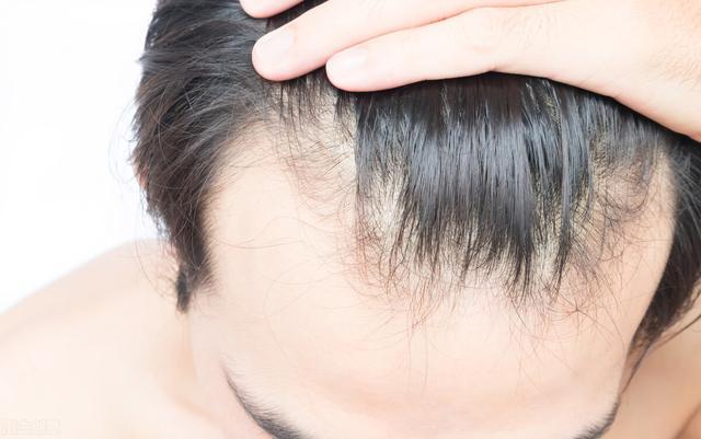 头发掉的厉害怎么回事啊