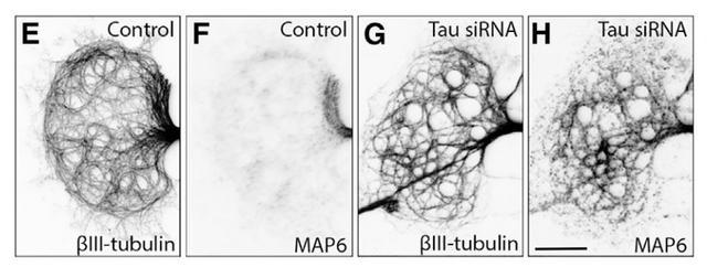 《细胞》子刊:误解四十年!华人科学家发现,阿尔茨海默相关tau蛋白的真实功能我们可能搞反了|科学大发现