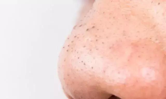 谁都长过黑头粉刺,但你嘞解你的黑头粉刺是哪种型型吗?
