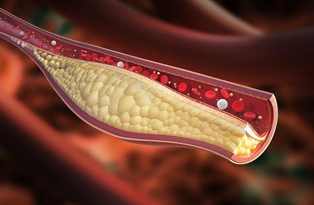 """膽固醇越低越好? 提醒:4個方法,或能把膽固醇""""控制""""住"""