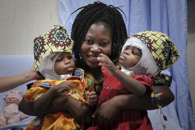意大利成功分离双胞连头女婴!后颅骨相连罕见,手术或为世界首例