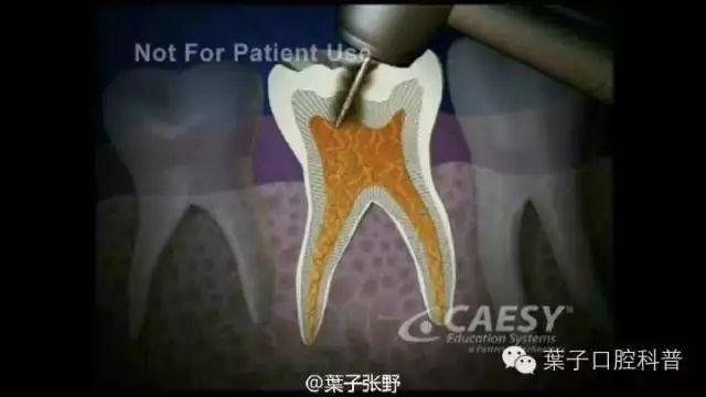 宝宝烂牙去治疗,牙医说要用麻药,父母该如何选择