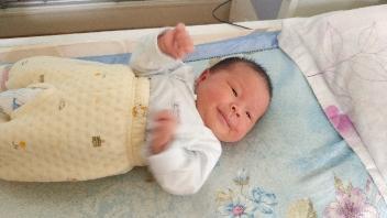 我家宝宝一个月了,脸还黄,怎么办呀