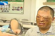 小伙被烧伤严重毁容,自卑痛苦20多年,7次整形手术判若两人