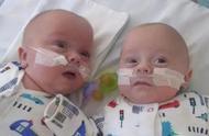 世界上最小雙胞胎男孩!23周出生時只有巴掌大小,奇跡生還