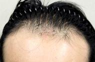 25岁女白领脱发只剩下三成发量!脱发到底该怎么抑制?