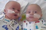英国最小双胞胎奇迹生还 出生时体重比一罐汽水还要轻