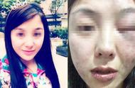女子凌晨街頭被暴打 施暴者被拘5天 警方:系兩人就餐時發生口角