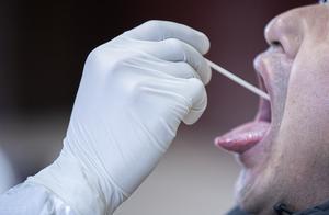新冠核酸检测为何新设肛拭子?专家提示:减少漏诊,阻止假阴性
