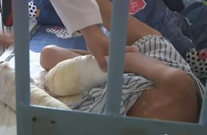 7岁男童遭亲父烟头烫伤满身伤疤,双手感染坏死面临截肢
