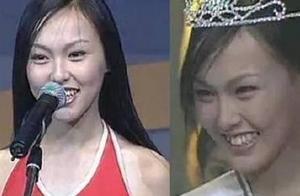 刚出道时的唐嫣:内双肿泡眼还有点龅牙,但笑起来还是一样的甜美