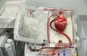 美国报告首例经器官移植感染新冠病毒病例!女子接受肺移植后死亡