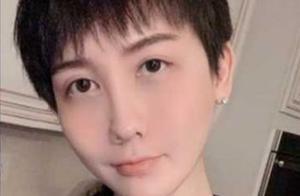 蛇精男刘梓晨近况曝光,全脸毁容崩溃:不知如何面对以后的生活