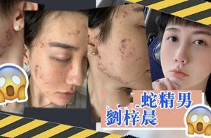 刘梓晨晒毁容照,称正经历地狱般生活,他这张脸还能重生吗?
