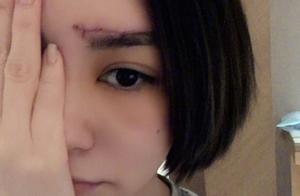 阿娇受伤后首次直播,无精修时颜值很能打,39岁模样真没看错?