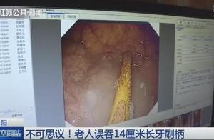 老人误吞14厘米牙刷柄竟置之不理 卡在胃中9个月后疼痛难忍
