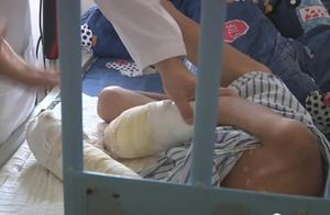 揪心!7岁男童浑身严重烫伤感染,双手面临截肢,凶手竟是亲生父亲
