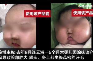 哪些宝宝面霜、湿疹膏可能含有激素?