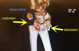 吴京暗示老婆桡骨远端骨折,这是他最想知道的5个骨折问题