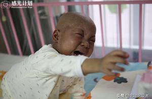 """3岁帅宝宝黑如炭,皮肤要蜕个遍,泪言:""""这个丑八怪不是我"""""""