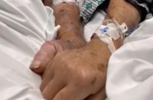 间隔仅几分钟 美国结婚70年夫妇因新冠肺炎相继离世
