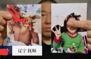 """大快人心!""""辽宁6岁女童被虐待""""后续进展,受虐女童监护人已变更"""