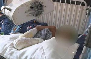 7岁男童被亲生父亲虐待,全身多处被烟头烫伤,双手将面临截肢