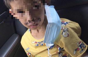 广东7岁男童被父亲用烟头烫、打火机烧,或面临截肢,其父已被刑拘