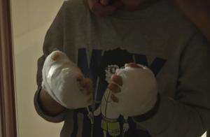 9岁男孩双手深二度烫伤,班主任称其已多次遭继母虐待