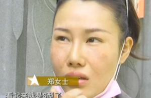 美女花四万元整形 鼻子成了S型:只敢开美颜拍照