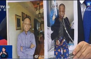 武汉中心医院易凡医生已出院且皮肤变白 胡卫锋医生正在康复治疗中