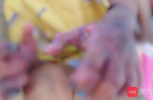 茂名男童被父亲烫伤有截肢风险!其弟妹未受虐待,家贫未上学