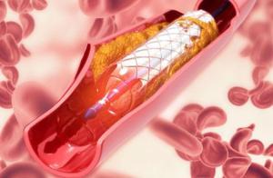 心脏支架全国集采平均降幅93% 中标产品均低于800元