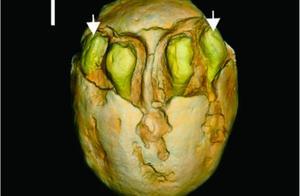 1500万年前的枣被发现!网友:好吃吗?