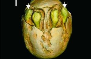 1500万年前的枣被发现 网友:好吃吗?