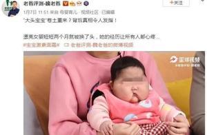 """5个月女婴被曝使用面霜后变""""大头娃娃"""",脸硬得像石头!卫健委回应"""