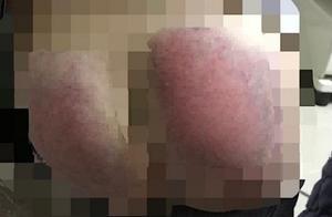重庆女童未完成作业,被老师用齿钉板子打到医院,老师:以为不疼