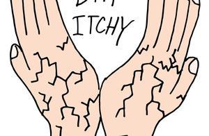 手上也有可能长脚气,还会传遍全身?这个症状你真得小心