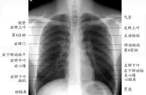 胸片的读片方法——正侧位相