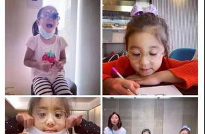 贾静雯女儿被查出先天性弱视,屈光追踪可更早发现问题