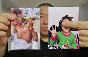 滚水浇头、铁钳拔牙、掰断胳膊…6岁女童惨遭生母及其男友虐待!生父直呼后悔