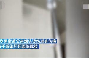 广州7岁男童遭父亲用烟头烫伤,双手面临截肢!可怕