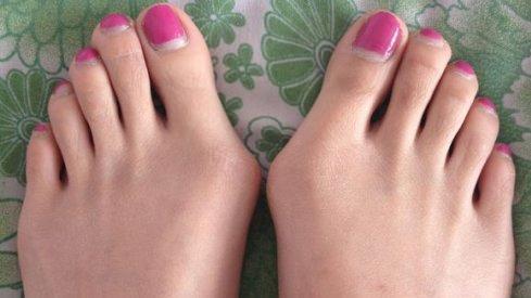 女孩子穿高跟鞋脚变形如何恢复