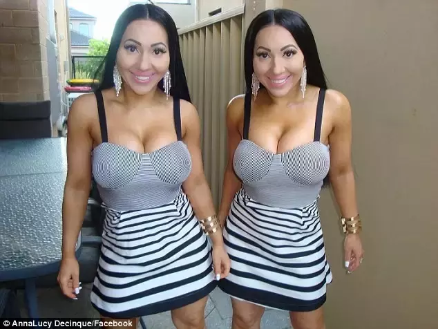 澳洲这对奇葩双胞胎姐妹花,一起整容,现在要嫁给同一个男人啦