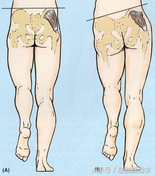 腰酸背痛,你可曾怀疑过你的骨盆?