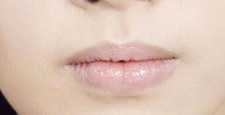 """""""嘴唇""""可以看出你是否健康 看看我说的对不? 疾病防治 第2张"""
