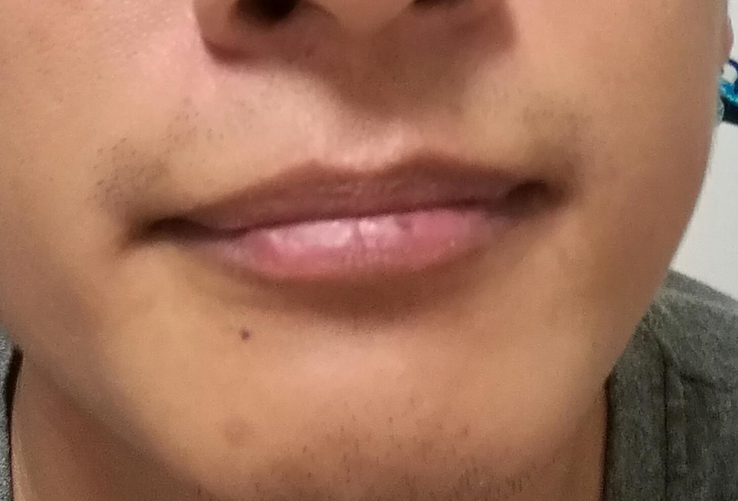 """""""嘴唇""""可以看出你是否健康 看看我说的对不? 疾病防治 第4张"""