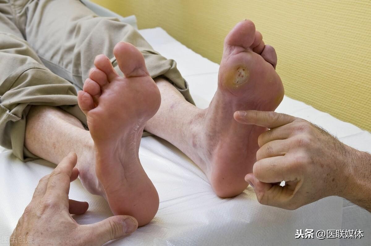 """女性更年期,常有足底疼痛? 一般是這3種因素在""""使壞"""""""